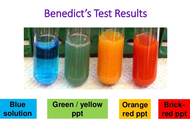 Benedict S Test For Reducing Sugar Medical Study Zone
