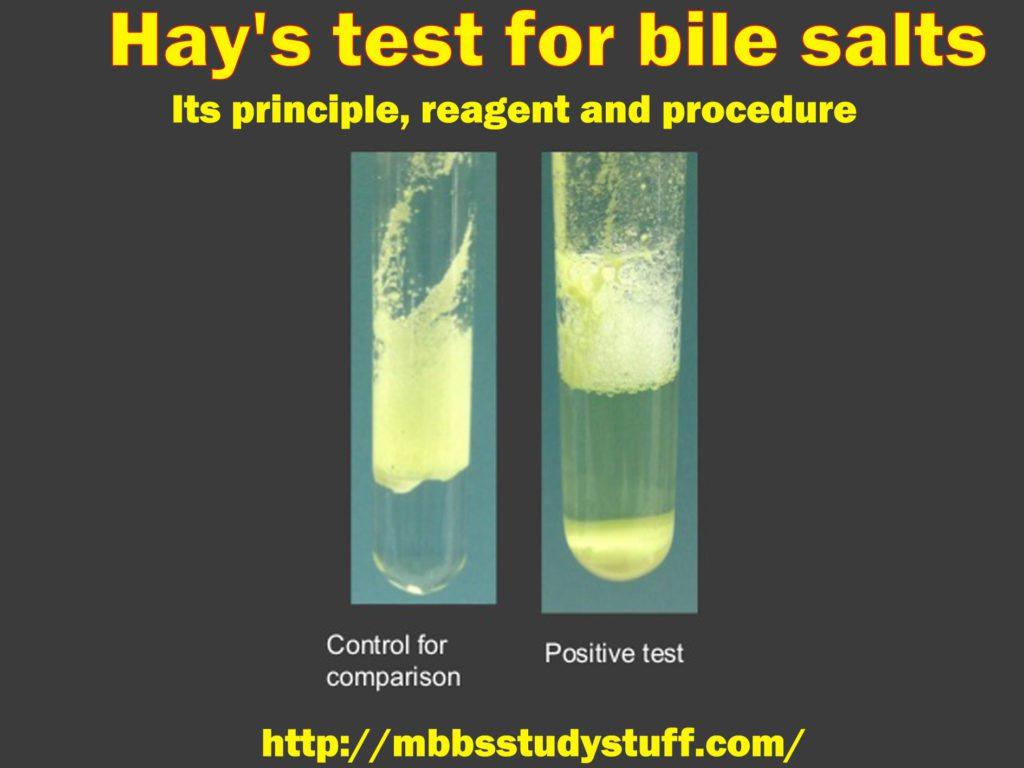 Hay's test for bile salts