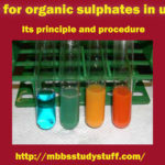 Test for organic sulphates in urine – Its principle and procedure