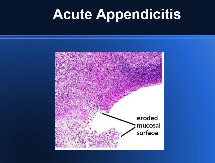 appendicitis pathology sheet