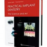 Practical Implant Dentistry: The Science and Art Second Edition PDF Free Download
