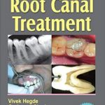 Step by Step Root Canal Treatment PDF Free Download
