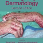 Download Emergency Dermatology 2nd Edition PDF Free