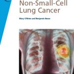 Download Fast Facts: Non-Small-Cell Lung Cancer PDF Free