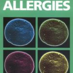 ABC of Allergies PDF Free Download