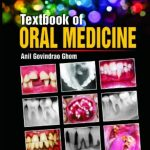 Textbook of Oral Medicine 2nd Edition PDF Free Download
