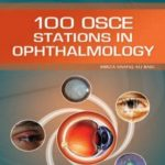 100 OSCE Stations in Ophthalmology By Mirza Shafiq Ali Baig PDF Free Download