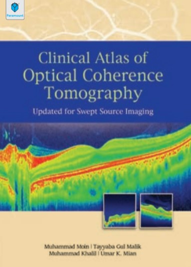 Clinical Atlas of Optical Coherence Tomography Muhammad Moin PDF Free Download