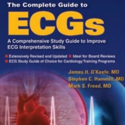 The Complete Guide to ECGs 4th Edition By James H. O'Keefe PDF Free Download