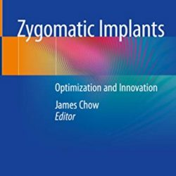 Zygomatic Implants Optimization and Innovation PDF Free Download