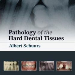 Pathology of the Hard Dental Tissues PDF Free Download