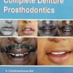 A Primer on Complete Denture Prosthodontics PDF Free Download
