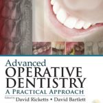 Advanced Operative Dentistry PDF Free Download