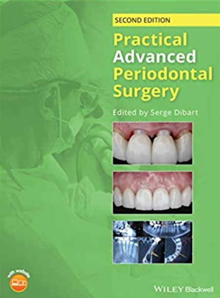 Practical Advanced Periodontal Surgery 2nd Edition PDF Free Download