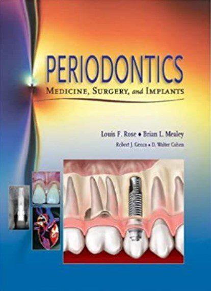 Periodontics: Medicine, Surgery, and Implants PDF Free Download