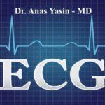 ECG Basics PDF By Dr. Anas Yasin – MD Free Download