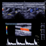 Download Clinical Approach to Vascular Ultrasound and RPVI Prep Course 2021 Free