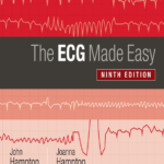 The ECG Made Easy 9th Edition PDF Free Download