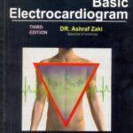Basic Electrocardiogram 3rd Edition Dr Ashraf Zaki PDF Free Download